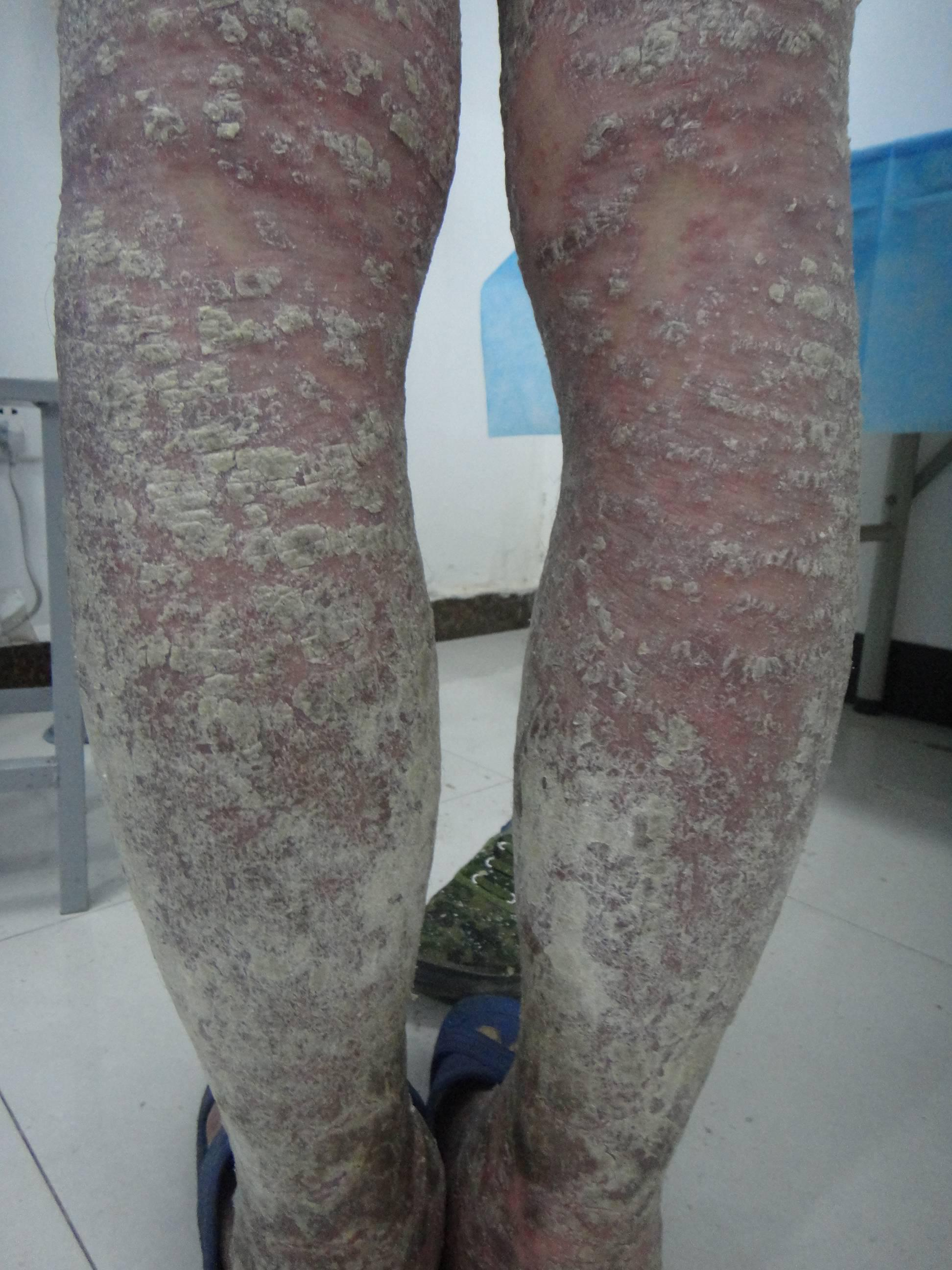 红皮型银屑病如何治疗
