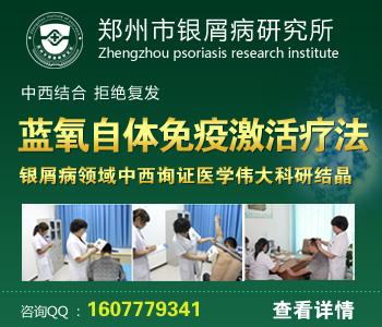 郑州治疗牛皮癣哪家医院好