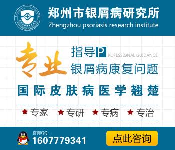 郑州市治疗牛皮癣最好的医院