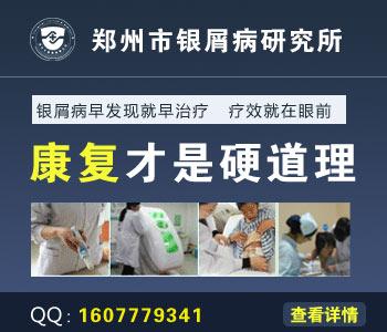 郑州哪里治疗银屑病最好