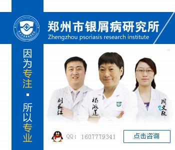 郑州哪个医院治牛皮癣好
