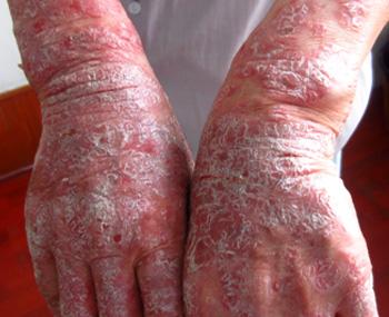 银屑病晚期症状是什么