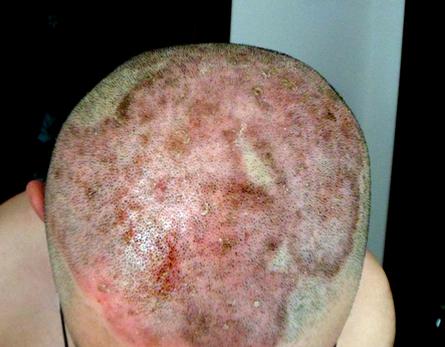 头部牛皮癣什么症状