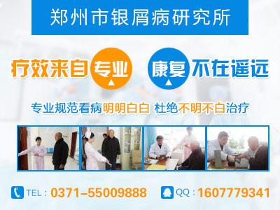 郑州治疗牛皮癣的医院哪家最好