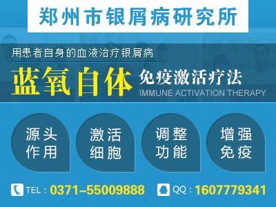 郑州哪家医院治疗银屑病权威
